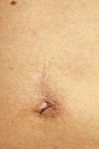 18960631 – scar after surgery to remove an umbilical hernia