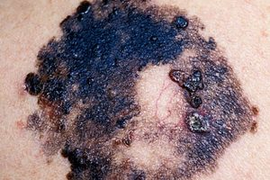 Malignant-Melanoma-on-the-human-skin