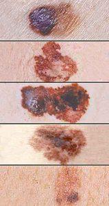 Melanoma Samples